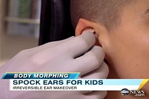 Plastic Surgeon Crafts Pointed Ears for Spock Fans [VIDEO]